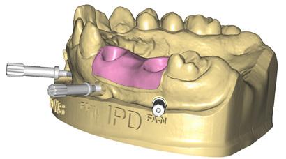 http://www.proteticke-komponenty.cz/images/3d_tisteny_model_digitalni_analogy.jpg