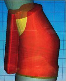 http://www.proteticke-komponenty.cz/images/cad_cam_titanove_baze_deformace.jpg