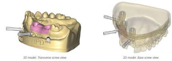 http://www.proteticke-komponenty.cz/images/digitalni_analogy_zubni_implantaty.jpg